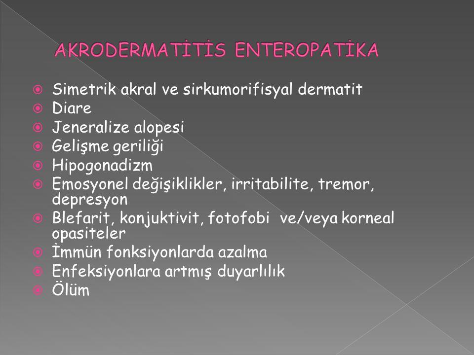  Simetrik akral ve sirkumorifisyal dermatit  Diare  Jeneralize alopesi  Gelişme geriliği  Hipogonadizm  Emosyonel değişiklikler, irritabilite, t