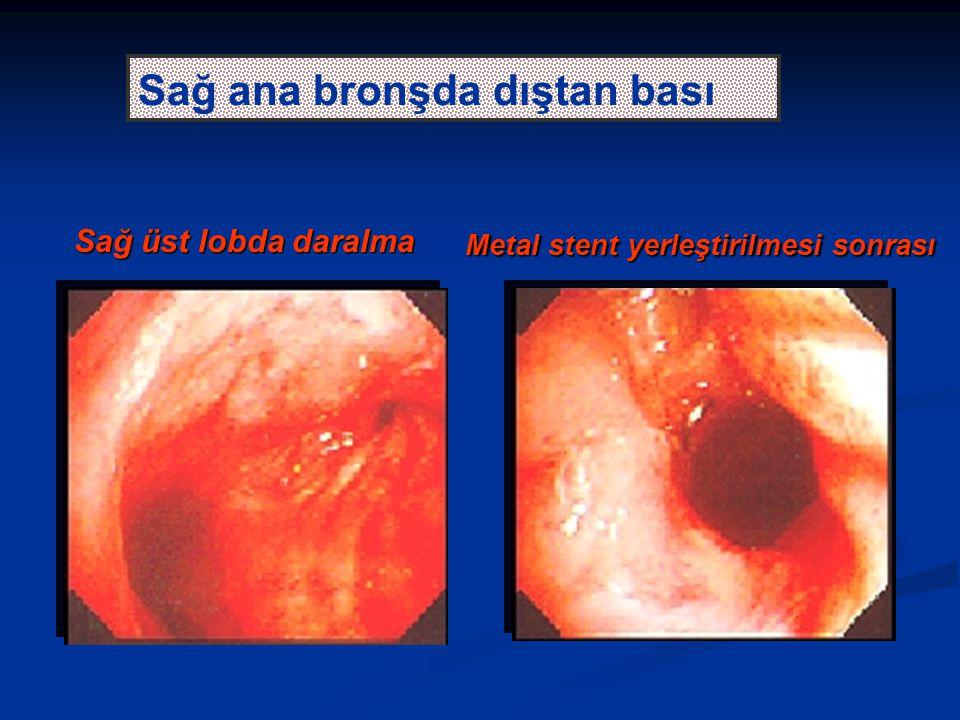 Sağ üst lobda daralma Metal stent yerleştirilmesi sonrası Sağ ana bronşda dıştan bası