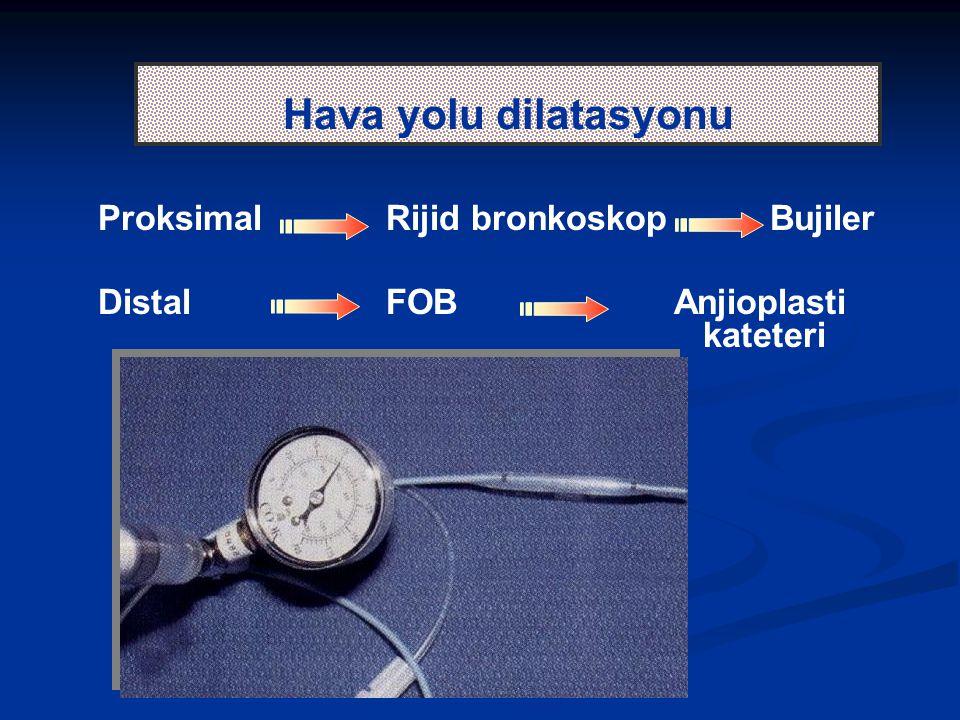 Hava yolu dilatasyonu ProksimalRijid bronkoskopBujiler DistalFOBAnjioplasti kateteri
