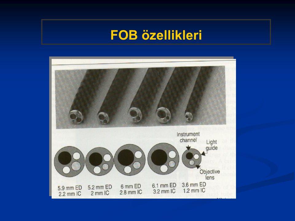 FOB özellikleri