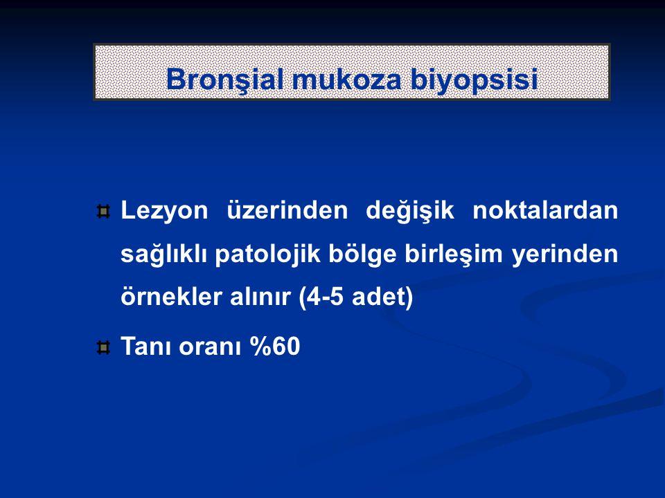 Bronşial mukoza biyopsisi Lezyon üzerinden değişik noktalardan sağlıklı patolojik bölge birleşim yerinden örnekler alınır (4-5 adet) Tanı oranı %60
