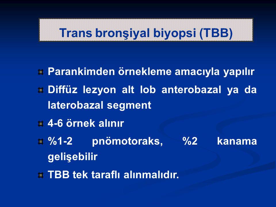 Parankimden örnekleme amacıyla yapılır Diffüz lezyon alt lob anterobazal ya da laterobazal segment 4-6 örnek alınır %1-2 pnömotoraks, %2 kanama gelişebilir TBB tek taraflı alınmalıdır.
