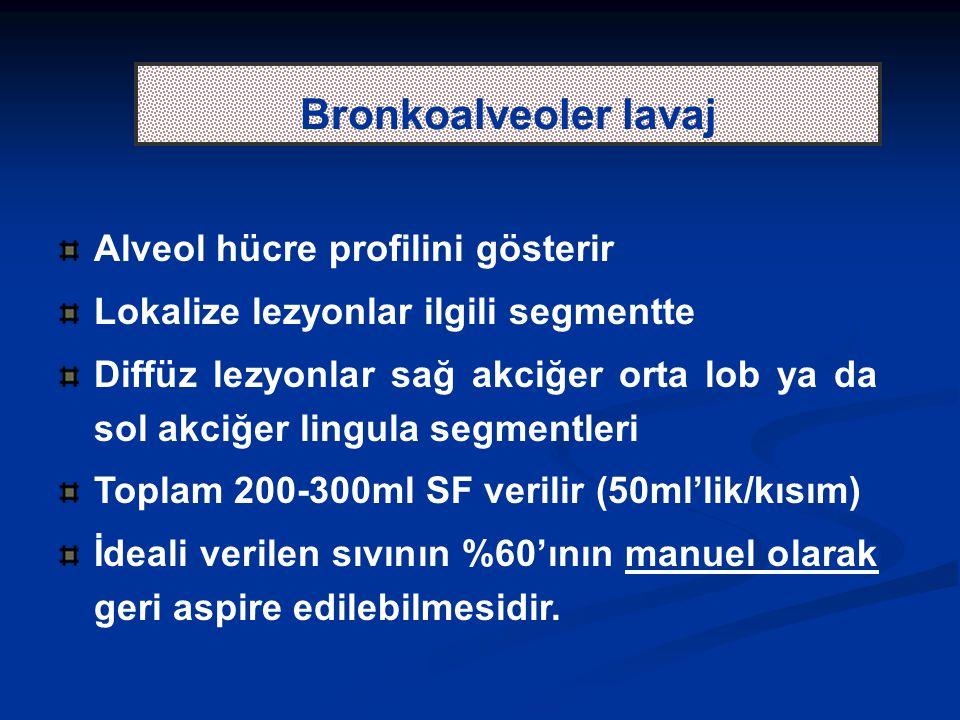Bronkoalveoler lavaj Alveol hücre profilini gösterir Lokalize lezyonlar ilgili segmentte Diffüz lezyonlar sağ akciğer orta lob ya da sol akciğer lingula segmentleri Toplam 200-300ml SF verilir (50ml'lik/kısım) İdeali verilen sıvının %60'ının manuel olarak geri aspire edilebilmesidir.