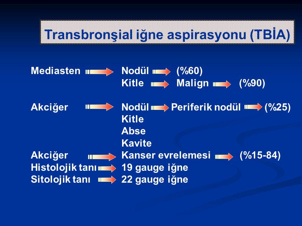 Transbronşial iğne aspirasyonu (TBİA) MediastenNodül (%60) Kitle Malign (%90) AkciğerNodül Periferik nodül (%25) Kitle Abse Kavite AkciğerKanser evrelemesi (%15-84) Histolojik tanı19 gauge iğne Sitolojik tanı22 gauge iğne