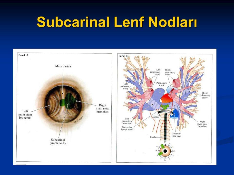 Subcarinal Lenf Nodları