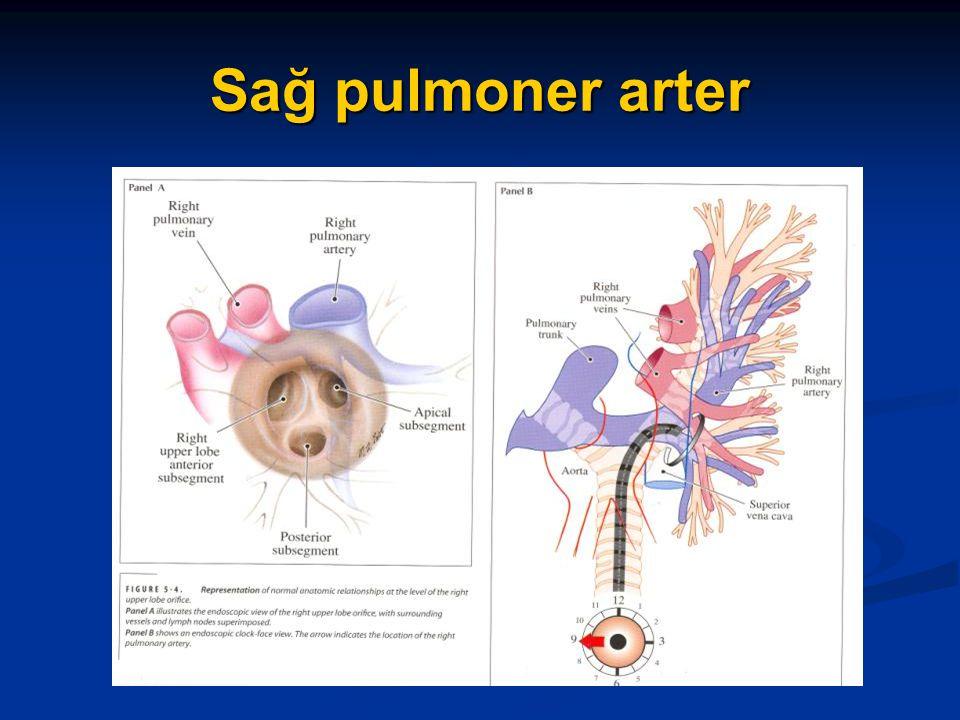 Sağ pulmoner arter