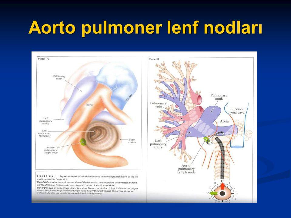 Aorto pulmoner lenf nodları