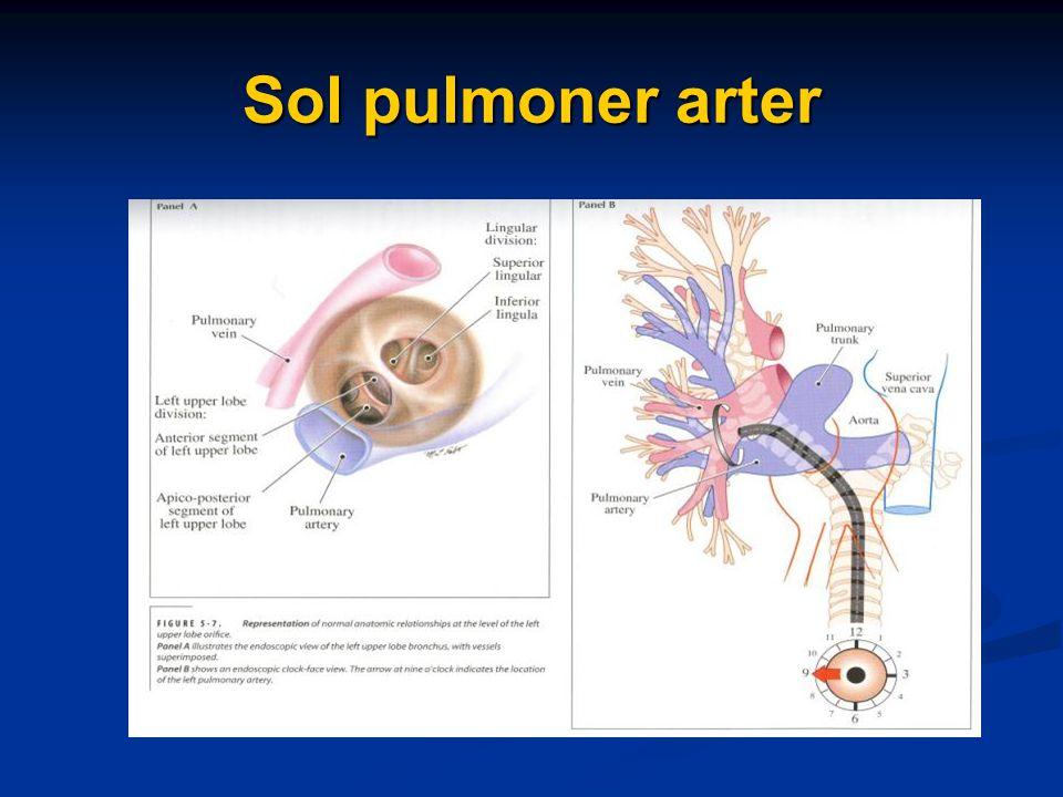 Sol pulmoner arter