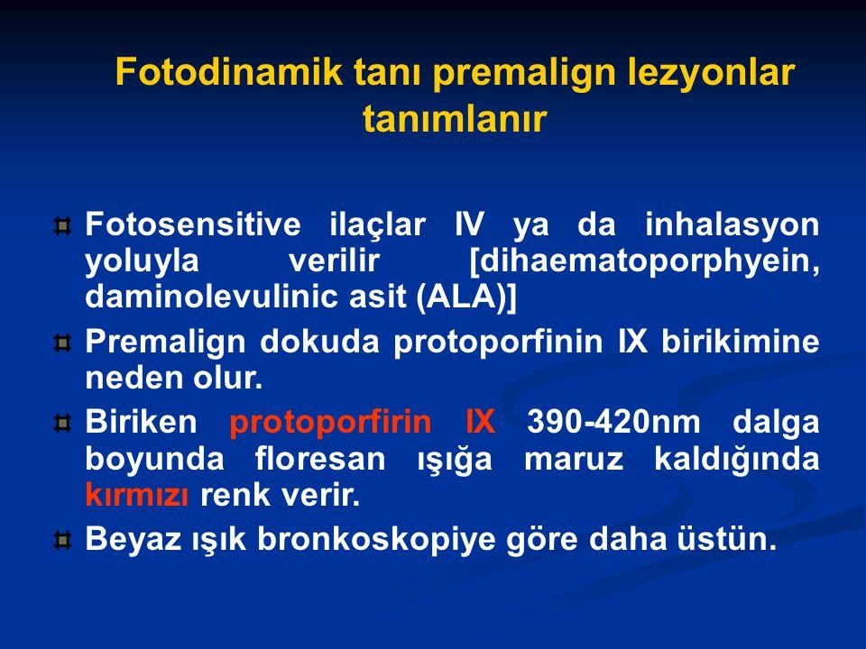 Fotosensitive ilaçlar IV ya da inhalasyon yoluyla verilir [dihaematoporphyein, daminolevulinic asit (ALA)] Premalign dokuda protoporfinin IX birikimine neden olur.