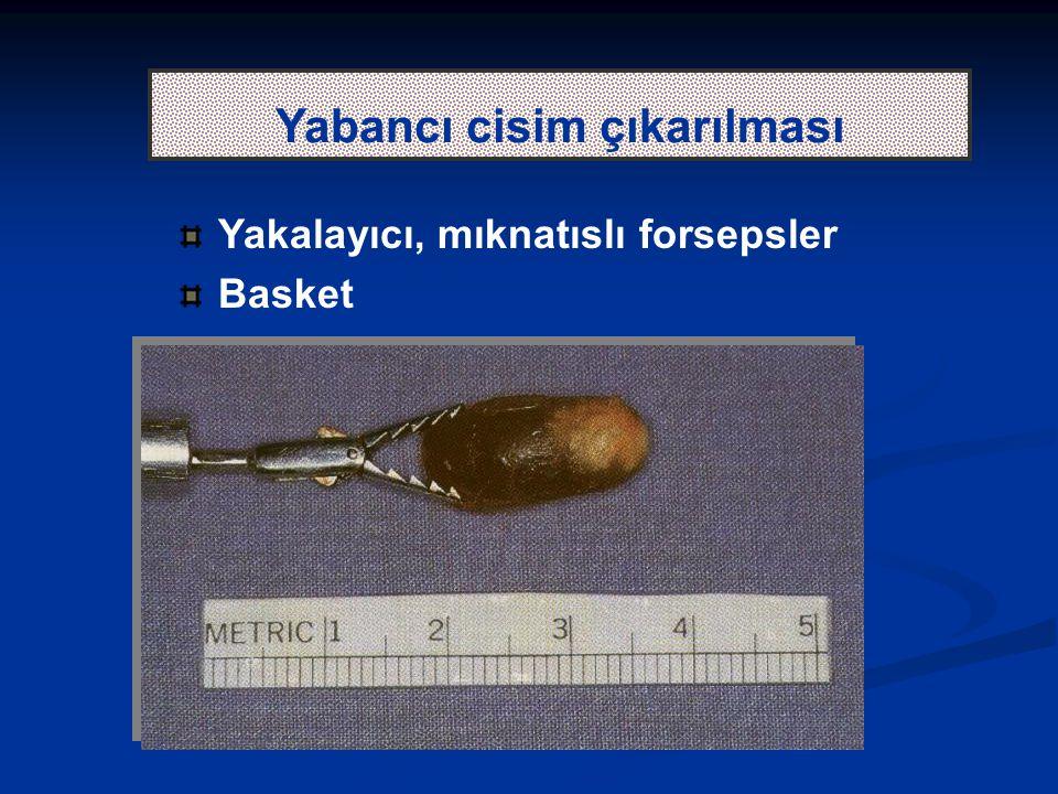 Yabancı cisim çıkarılması Yakalayıcı, mıknatıslı forsepsler Basket