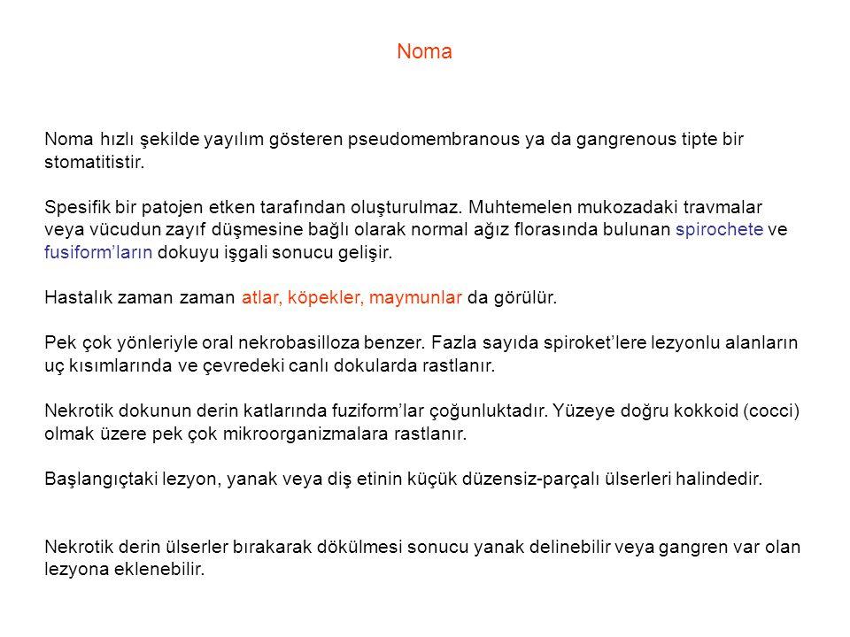 Noma Noma hızlı şekilde yayılım gösteren pseudomembranous ya da gangrenous tipte bir stomatitistir. Spesifik bir patojen etken tarafından oluşturulmaz