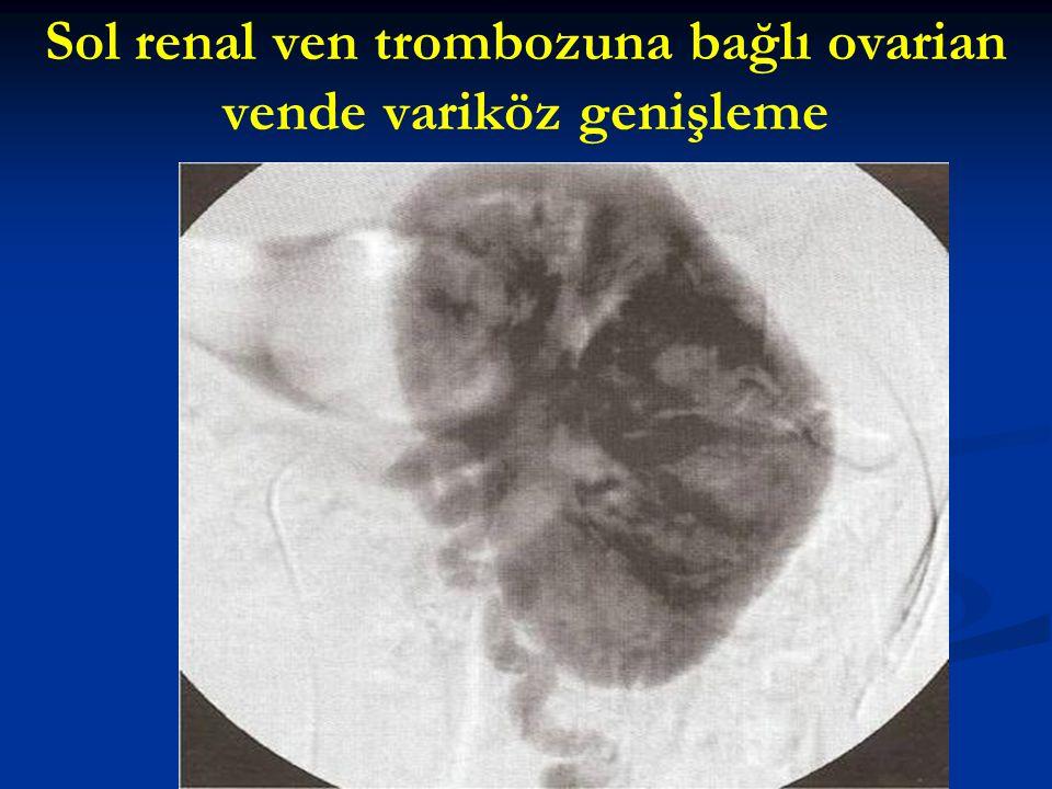 Sol renal ven trombozuna bağlı ovarian vende variköz genişleme
