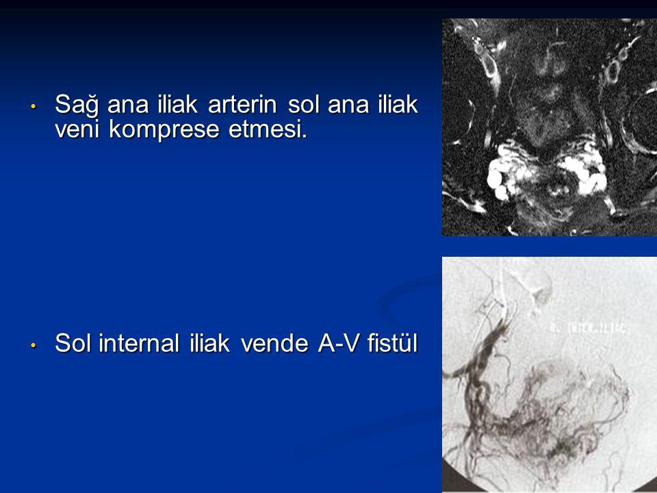 Sağ ana iliak arterin sol ana iliak veni komprese etmesi. Sağ ana iliak arterin sol ana iliak veni komprese etmesi. Sol internal iliak vende A-V fistü