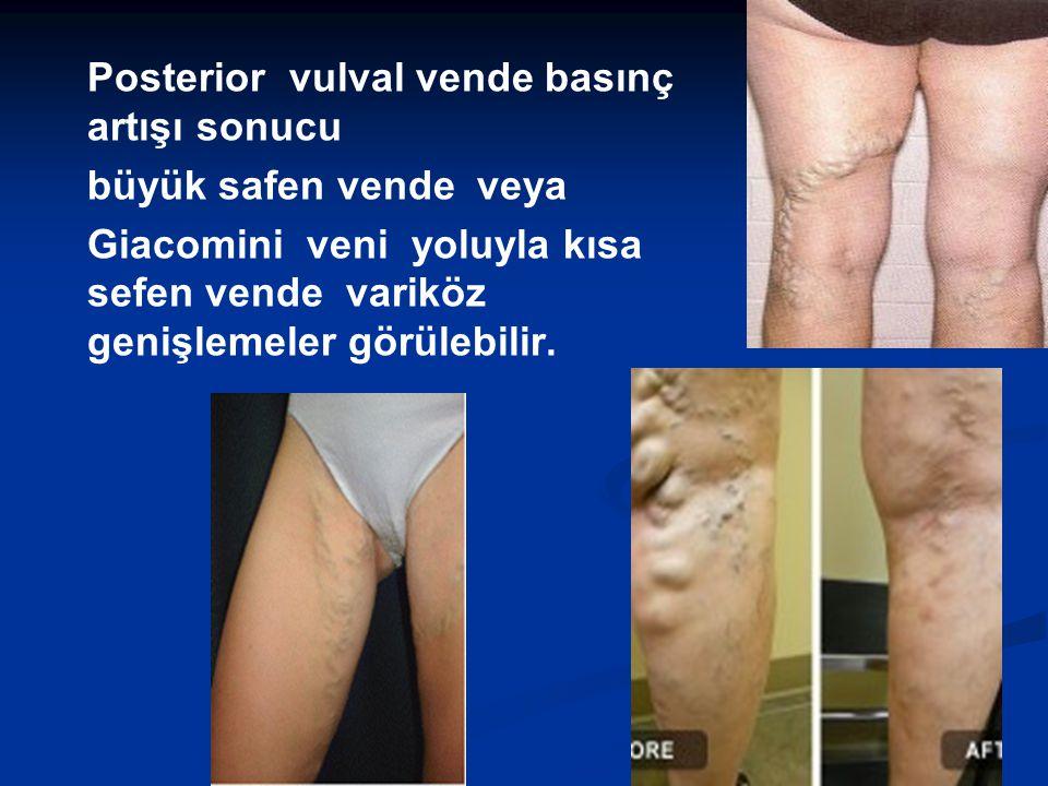 Posterior vulval vende basınç artışı sonucu büyük safen vende veya Giacomini veni yoluyla kısa sefen vende variköz genişlemeler görülebilir.