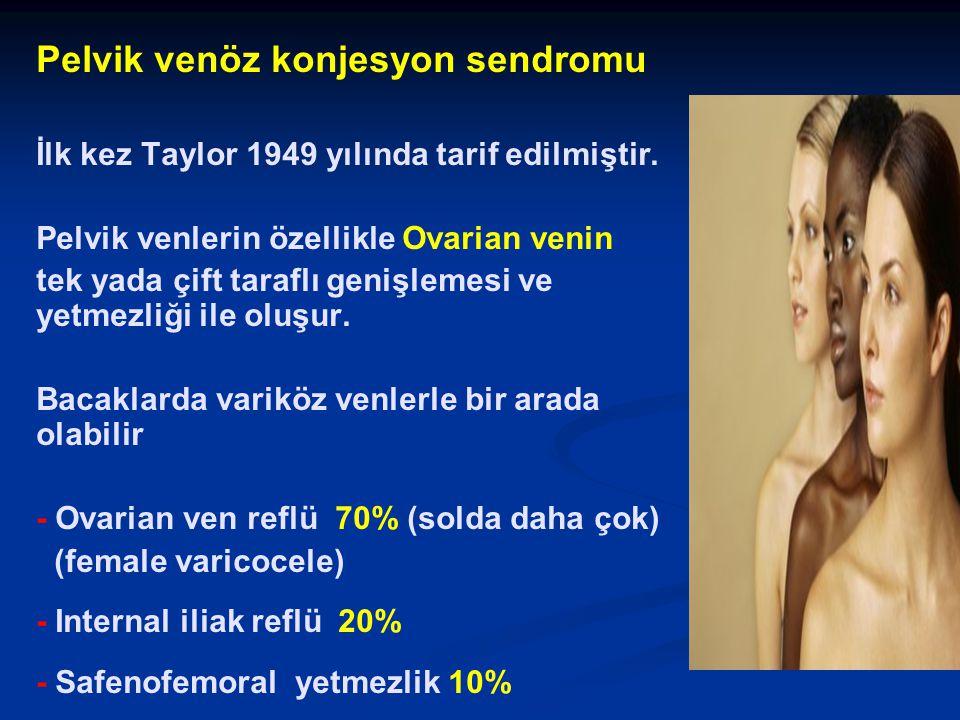 Pelvik venöz konjesyon sendromu İlk kez Taylor 1949 yılında tarif edilmiştir. Pelvik venlerin özellikle Ovarian venin tek yada çift taraflı genişlemes