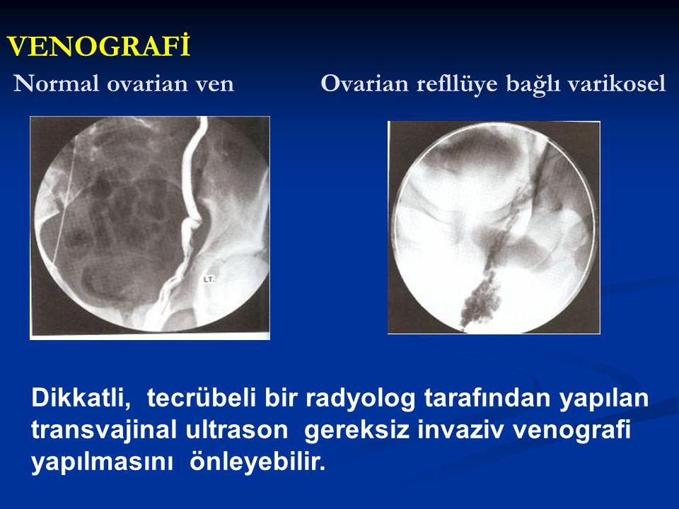 Normal ovarian ven Ovarian refllüye bağlı varikosel Dikkatli, tecrübeli bir radyolog tarafından yapılan transvajinal ultrason gereksiz invaziv venogra