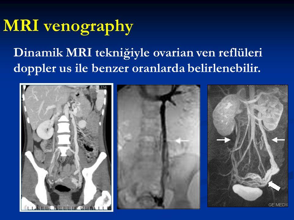 MRI venography Dinamik MRI tekniğiyle ovarian ven reflüleri doppler us ile benzer oranlarda belirlenebilir.