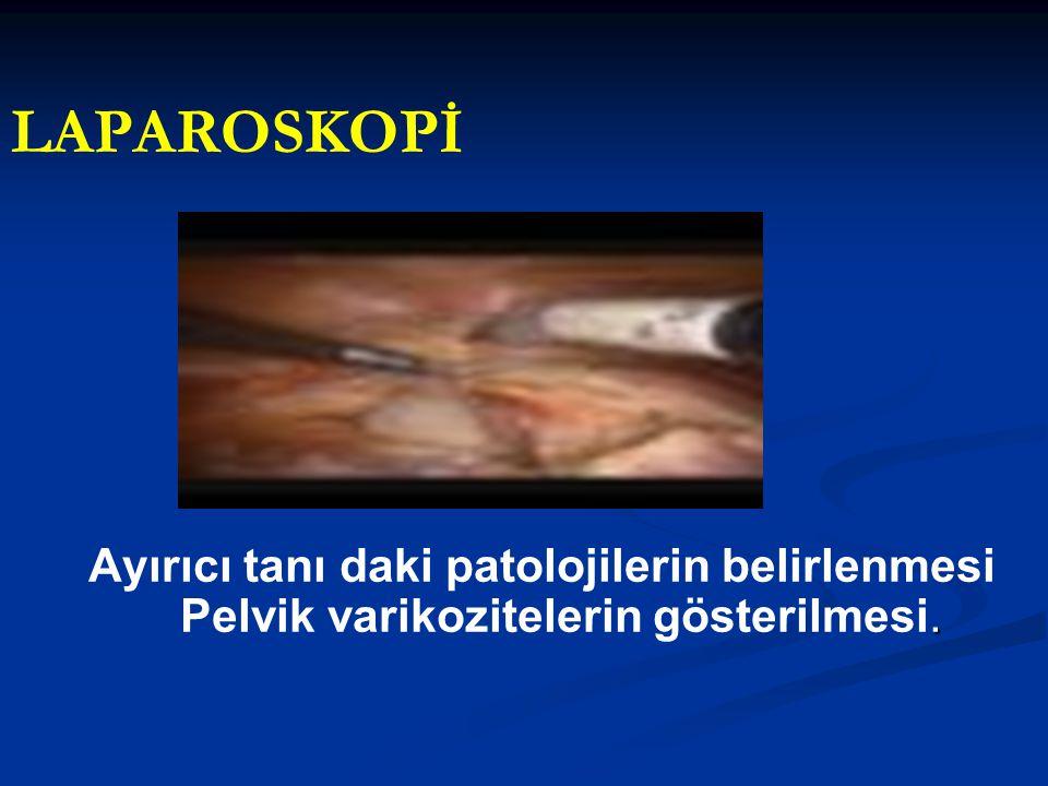 LAPAROSKOPİ. Ayırıcı tanı daki patolojilerin belirlenmesi Pelvik varikozitelerin gösterilmesi.