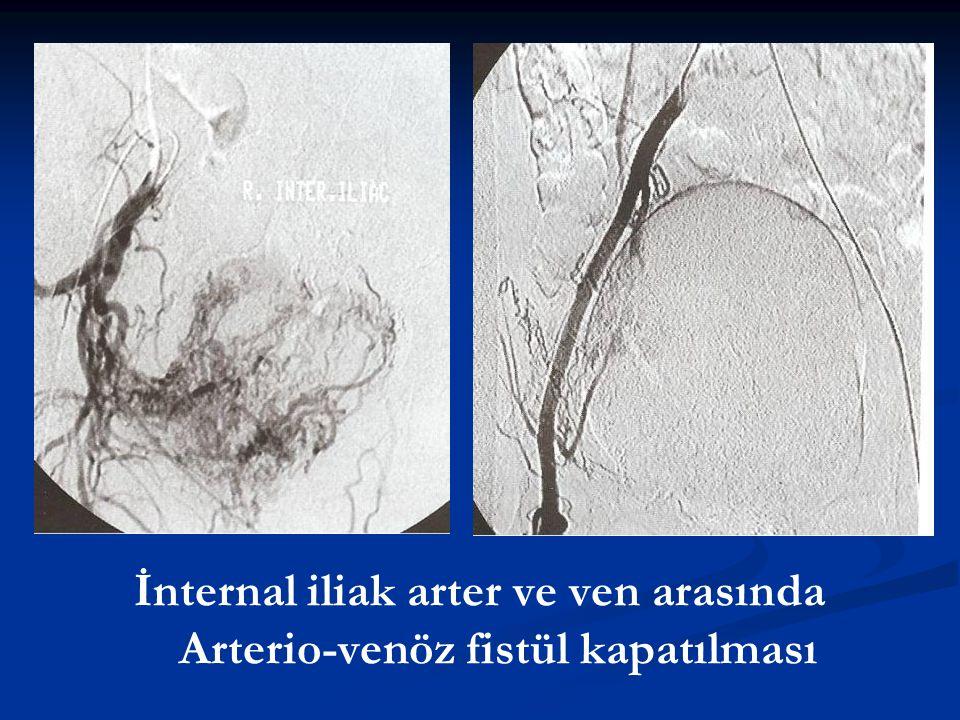 İnternal iliak arter ve ven arasında Arterio-venöz fistül kapatılması