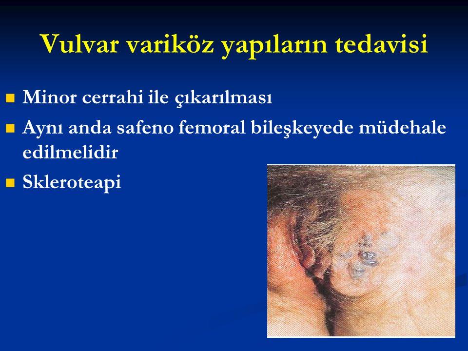 Vulvar variköz yapıların tedavisi Minor cerrahi ile çıkarılması Aynı anda safeno femoral bileşkeyede müdehale edilmelidir Skleroteapi