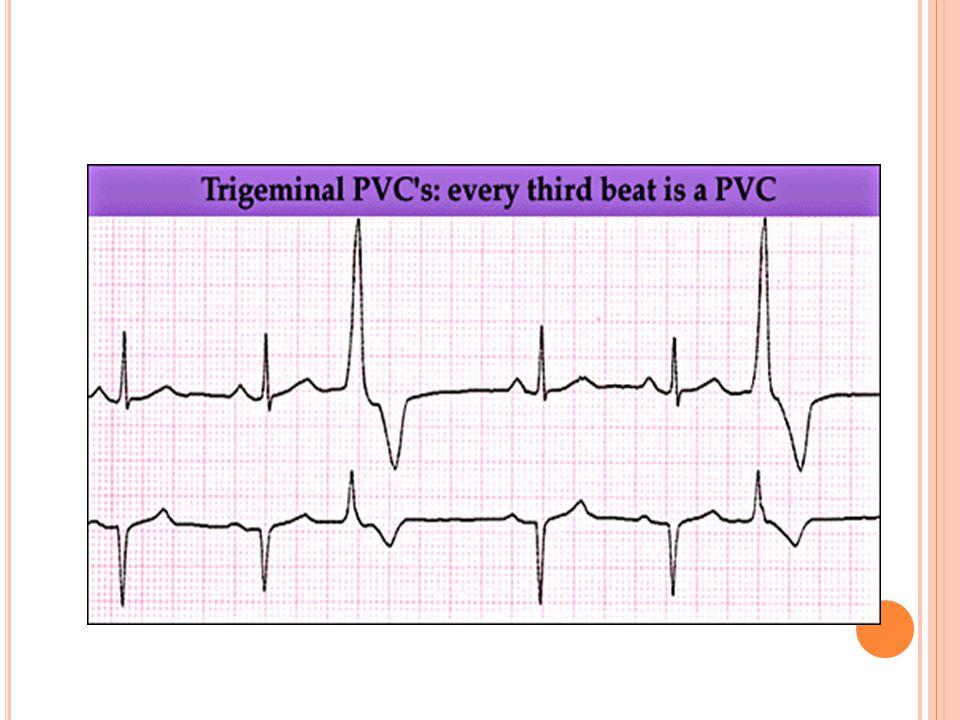 Ventriküler EA Normal EKG
