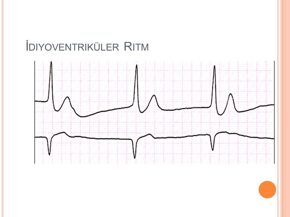 Hız:Dakikada 20 - 40 arası ya da daha az Ritm:Regüler ya da irregüler QRS:QRS > 120 ms. Pdalgası:Olabilir, QRS ile ilişkisizdir Klinik Prezantasyon: H