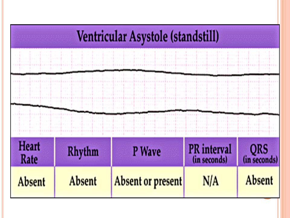İ DIYOVENTRIKÜLER R ITM TEDAVİ Altta yatan sebebe yönelik tedavi ve: Nabız varsa: Hızı bir an önce arttırma girişimi (pacemaker) Atropine SO 4 0.6 -1