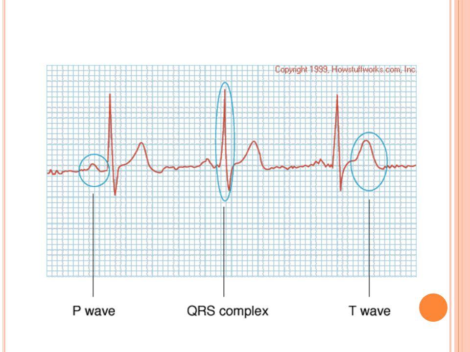 P dalgası  atriyum depolarizasyonu QRS  ventriküler depolarizasyon q  p dalgasından sonra oluşan ilk negatif dalga R  p dalgasından sonra oluşan i