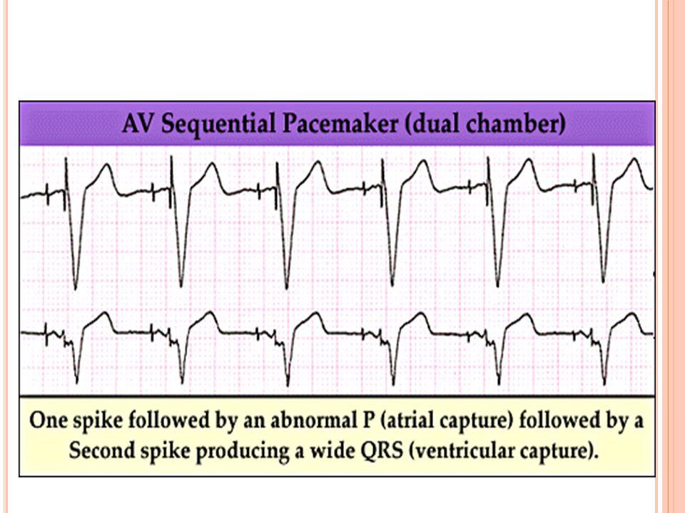 A SISTOLIDE TEDAVI PROTOKOLÜ Entübasyon ve CPR'a devam ederken Transkütan pacing'in bir an önce uygulanması Adrenalin: 3-5 dk aralarla 1 mg IV Vasopre