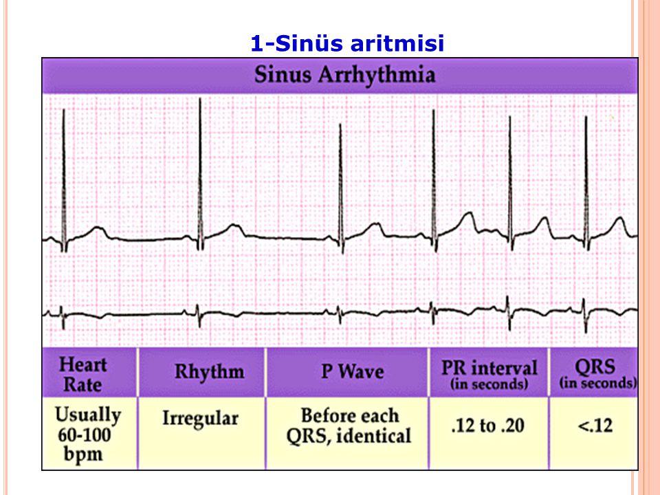 Sinüs Düğümü Bozuklukarı 1-Sinüs aritmisi 2-Sinüs taşikardisi 3-Sinüs bradikardisi 4-Hasta sinüs sendromu