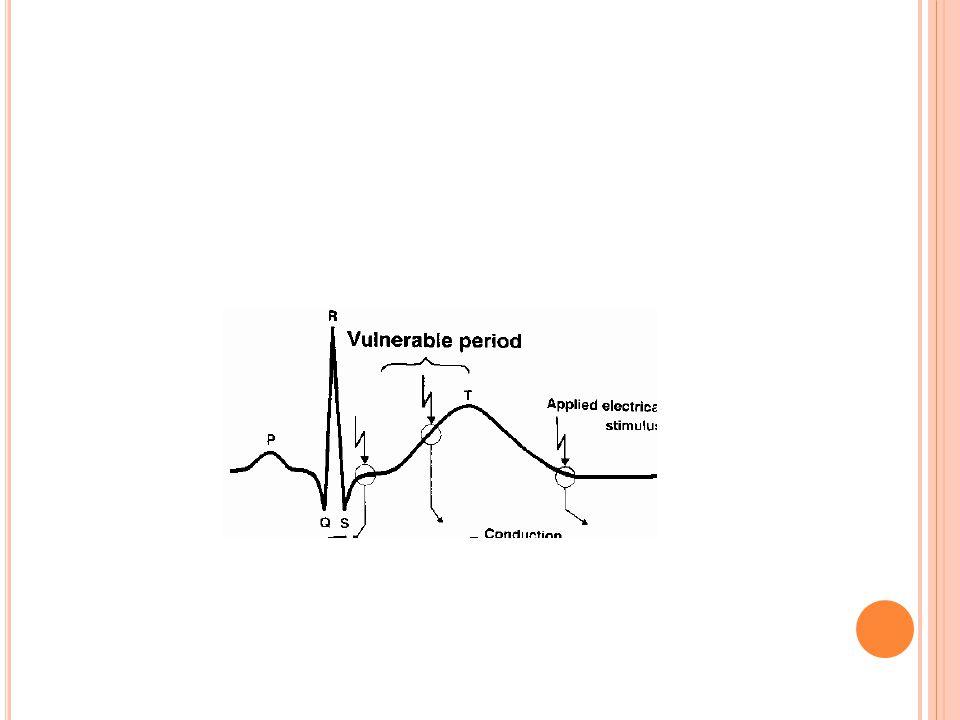 K ALP KASI ÖZELLIKLERI Uyarı çıkarabilme (otomatisite) Uyarılabilme (exitabilite) Kontraksiyon yapma Ritmik çalışma Refrakterlik Mutlak RP(QRS) Relati