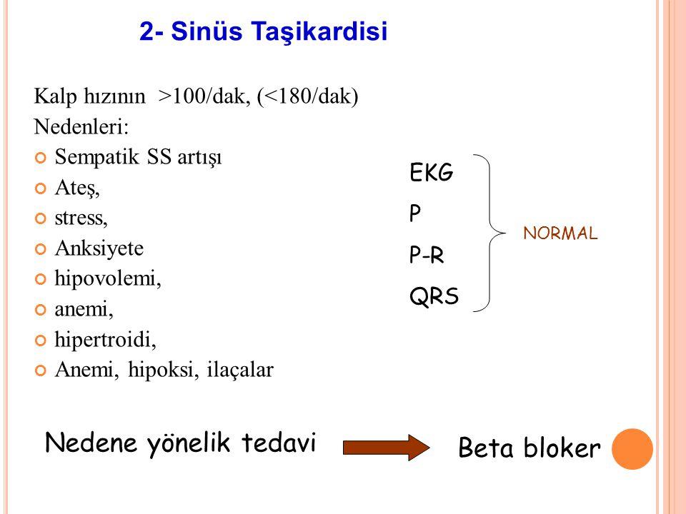 2- Sinüs Taşikardisi