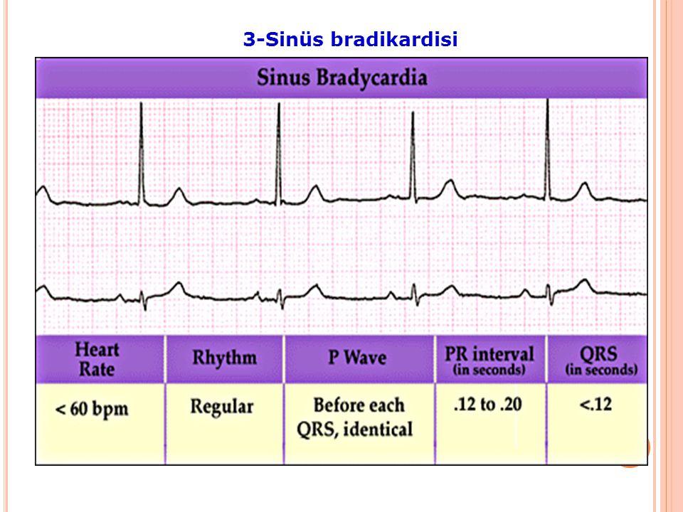 Kalp hızının >100/dak, (<180/dak) Nedenleri: Sempatik SS artışı Ateş, stress, Anksiyete hipovolemi, anemi, hipertroidi, Anemi, hipoksi, ilaçalar EKG P