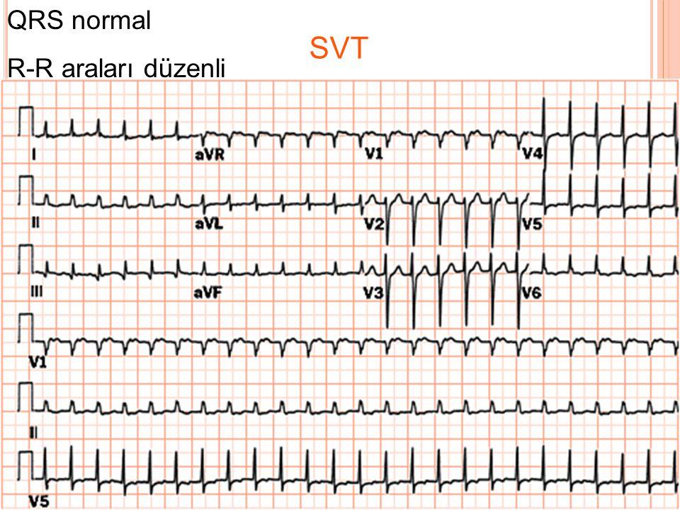 SVT QRS genişliği normal Düzenli ritim