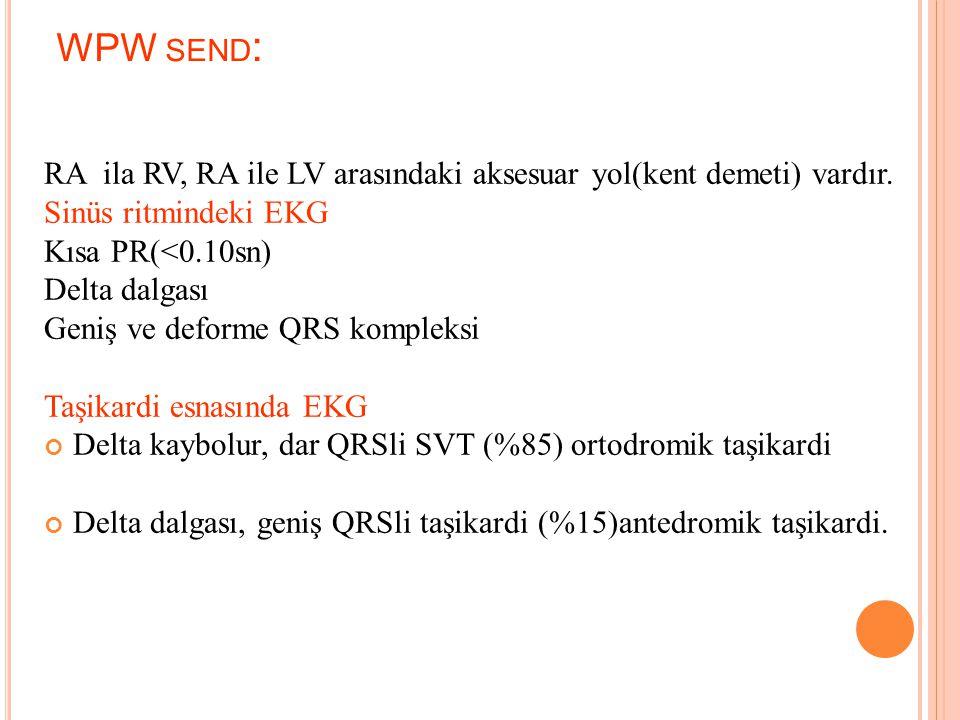 WPW Sendromu Aksesuar yol (KENT) DELTA dalgası PR < 120 ms QRS > 120 ms Neg. T Wolf Parkinson White (WPW)send.