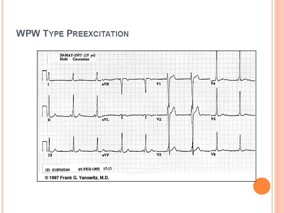 WPW SEND : RA ila RV, RA ile LV arasındaki aksesuar yol(kent demeti) vardır. Sinüs ritmindeki EKG Kısa PR(<0.10sn) Delta dalgası Geniş ve deforme QRS