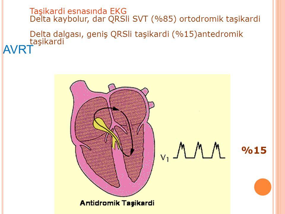 AVRT Taşikardi esnasında EKG Delta kaybolur, dar QRSli SVT (%85) ortodromik taşikardi Delta dalgası, geniş QRSli taşikardi (%15)antedromik taşikardi