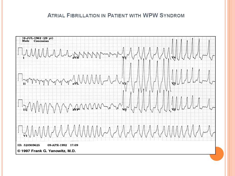 AVRT Taşikardi esnasında EKG Delta kaybolur, dar QRSli SVT (%85) ortodromik taşikardi Delta dalgası, geniş QRSli taşikardi (%15)antedromik taşikardi %