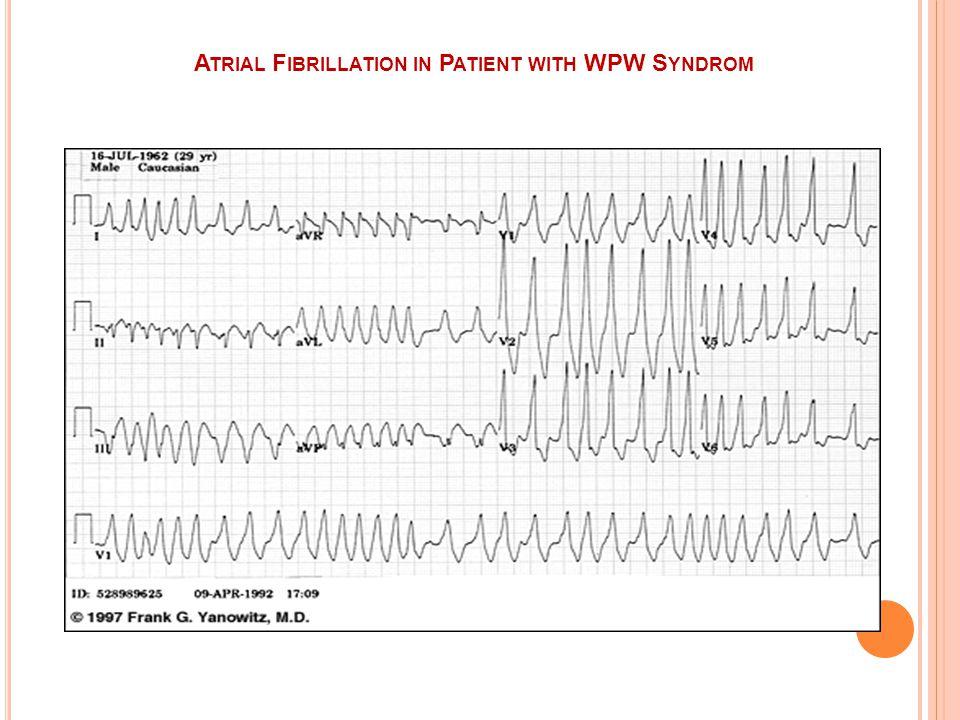 AF ETIYOLOJI Ateroskleoz Mitral stenoz Triotoksikoz Diğer kalp ve kapak hast Hipertansiyon Akciğer hast Alkol alımı İdiyopatik(Lone AF)