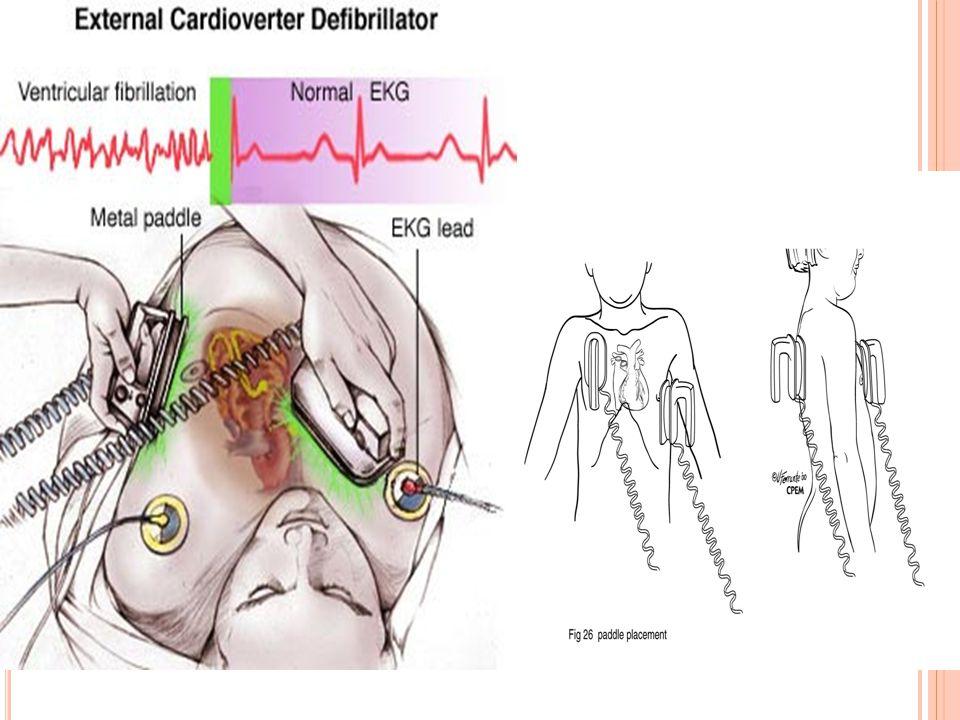 DC K ARDIYOVERSIYON D EFIBRILASYON SVT: senkronize ! 0.25-0.5 joule/kg gerekirse 2 katı VT: senkronize ! 2 joule/kg gerekirse 2 katı lidokain infüzyon