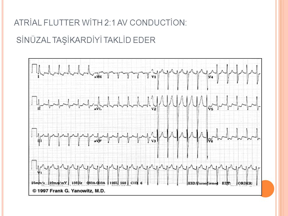 A TRIYAL FLATTER Re entry sonucu değişik derecede Av blokla seyreden atriyal aritmidir. Kapak hast, iskemi, KOAHta ortaya çıkabilir. EKG Flatter dalga