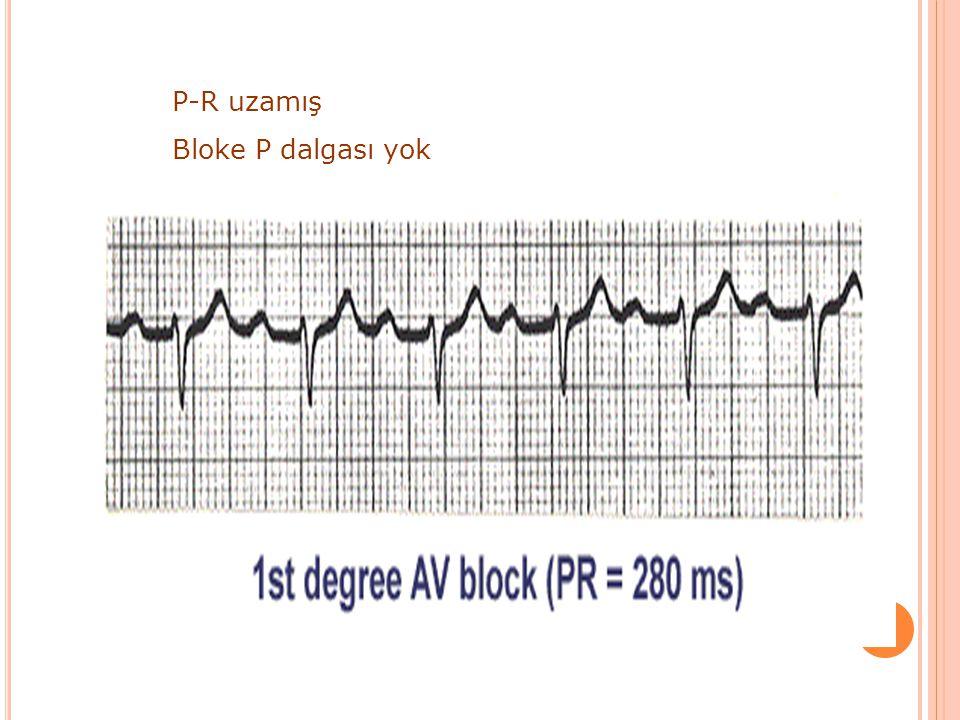 AV B LOK I.derece AV blok: P-R uzaması II.AV blok Mobitz-I: P-R progresif uzar ve bir P bloke olur Mobitz-II: P-R sabittir fakat bazı P ler bloke olur