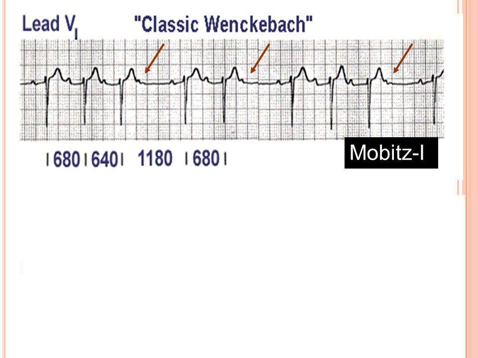 -Tip I (Mobitz I veya Wenckeback tipi) Blok 2 o AV blok