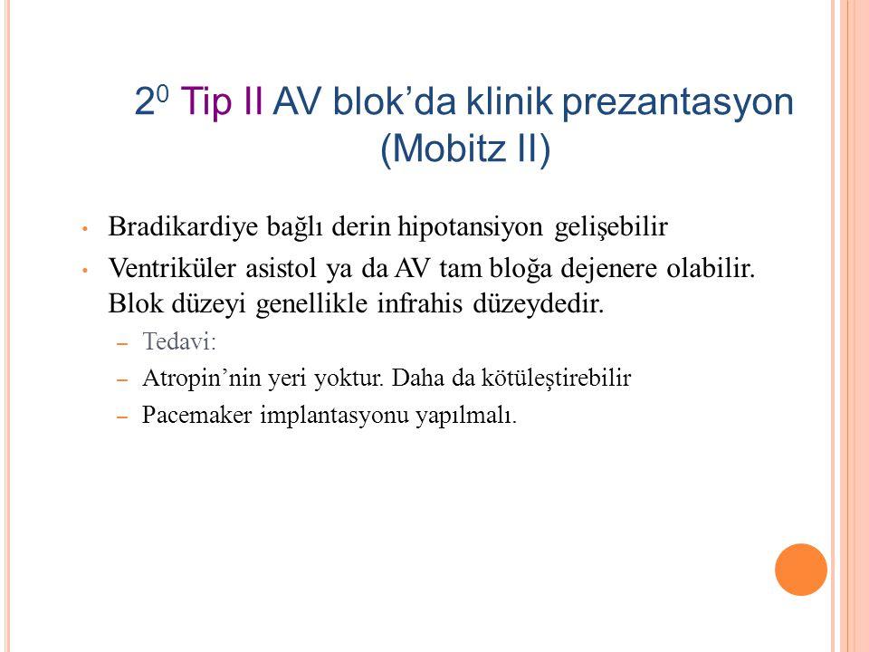 Tip II (Mobitz II) Blok 2 O AV BLOK
