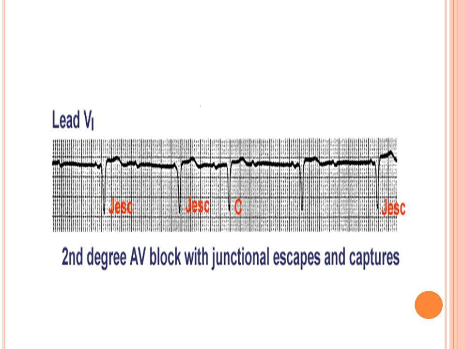 Bradikardiye bağlı derin hipotansiyon gelişebilir Ventriküler asistol ya da AV tam bloğa dejenere olabilir. Blok düzeyi genellikle infrahis düzeydedir