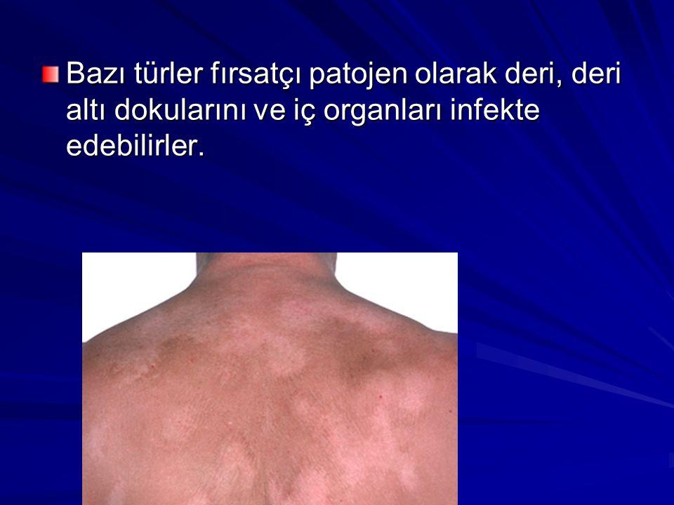 Bazı türler fırsatçı patojen olarak deri, deri altı dokularını ve iç organları infekte edebilirler.
