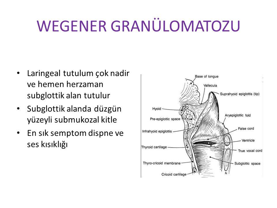 WEGENER GRANÜLOMATOZU Laringeal tutulum çok nadir ve hemen herzaman subglottik alan tutulur Subglottik alanda düzgün yüzeyli submukozal kitle En sık s