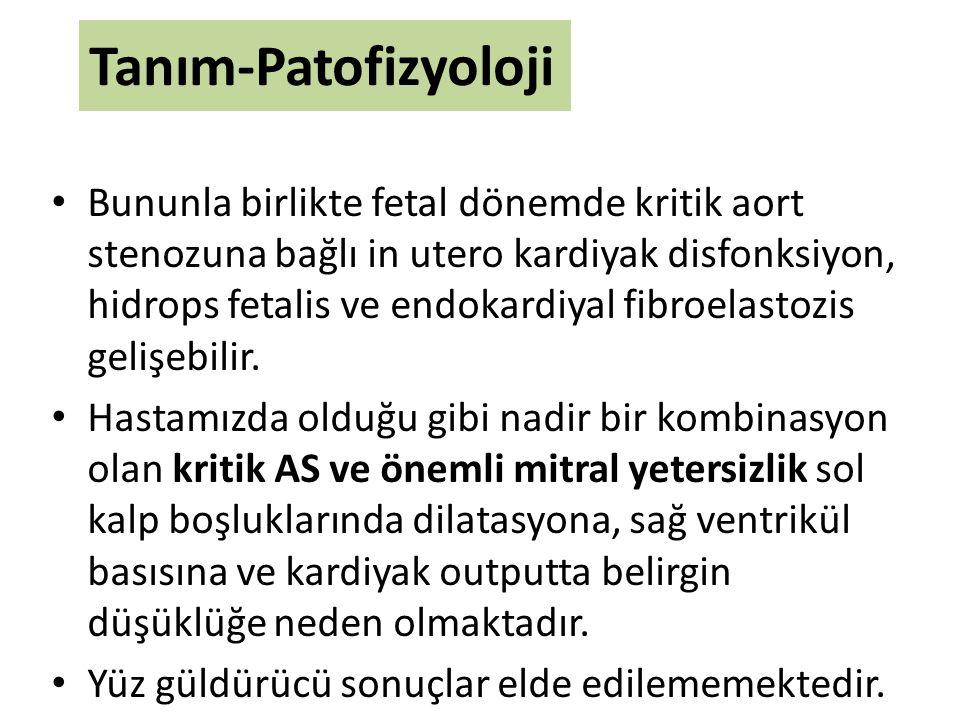 Tanım-Patofizyoloji Bununla birlikte fetal dönemde kritik aort stenozuna bağlı in utero kardiyak disfonksiyon, hidrops fetalis ve endokardiyal fibroel