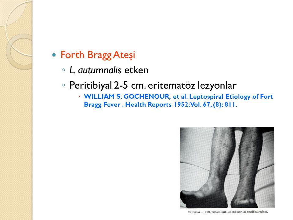 Forth Bragg Ateşi ◦ L. autumnalis etken ◦ Peritibiyal 2-5 cm. eritematöz lezyonlar  WILLIAM S. GOCHENOUR, et al. Leptospiral Etiology of Fort Bragg F