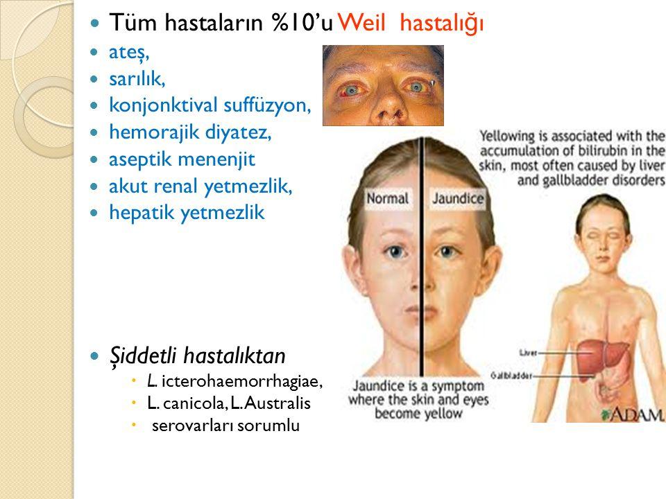 Tüm hastaların %10'u Weil hastalı ğ ı ateş, sarılık, konjonktival suffüzyon, hemorajik diyatez, aseptik menenjit akut renal yetmezlik, hepatik yetmezl